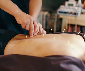 Terapias Alternativas, Medicina Tradicional Chinesa, Acupuntura